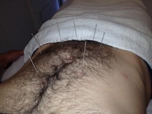 Babu - Acupuncture